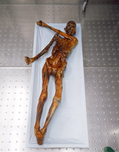 Ötzi laid out on a table
