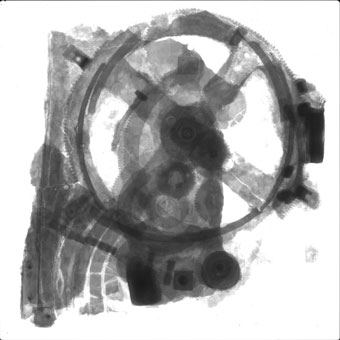 Radiograph of the Mechanism